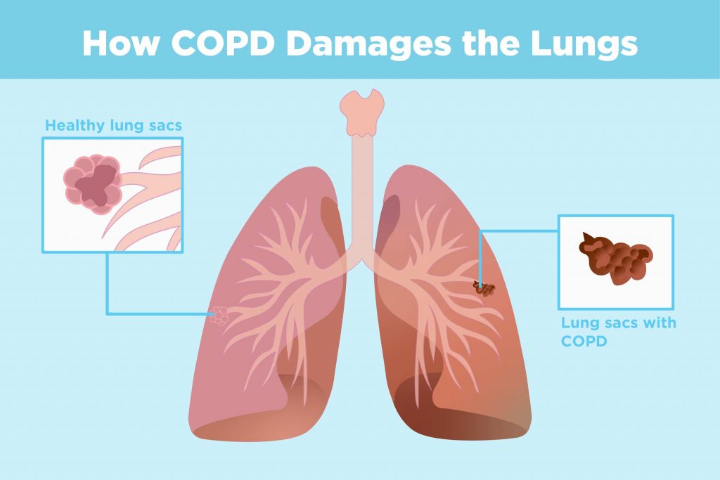 difference between healthy lung sac and COPD lung sac