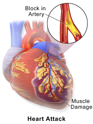 heart and its complications