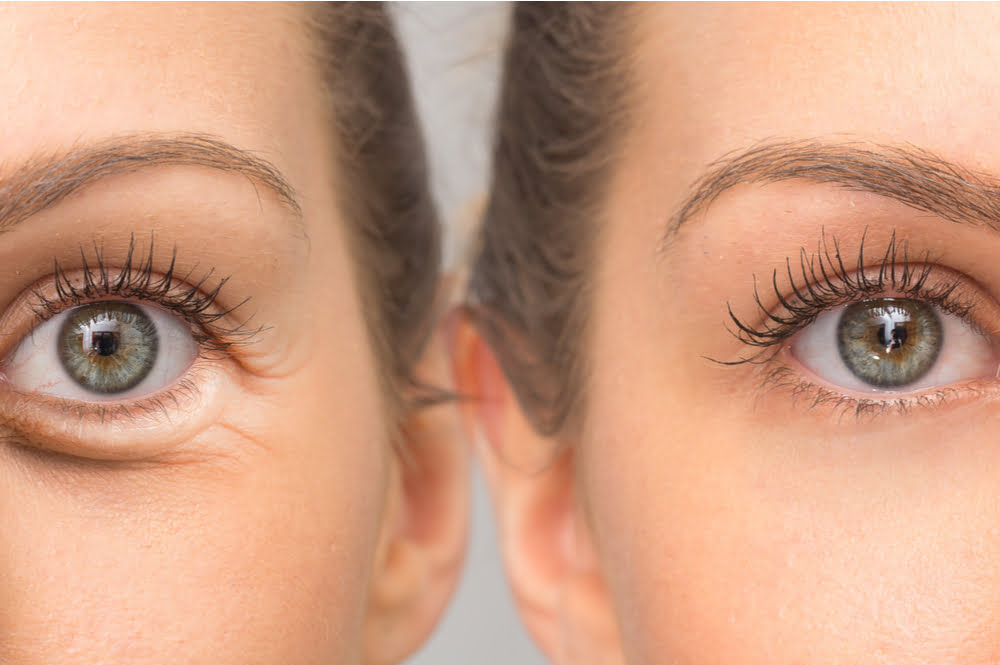 Puffiness of under-eye