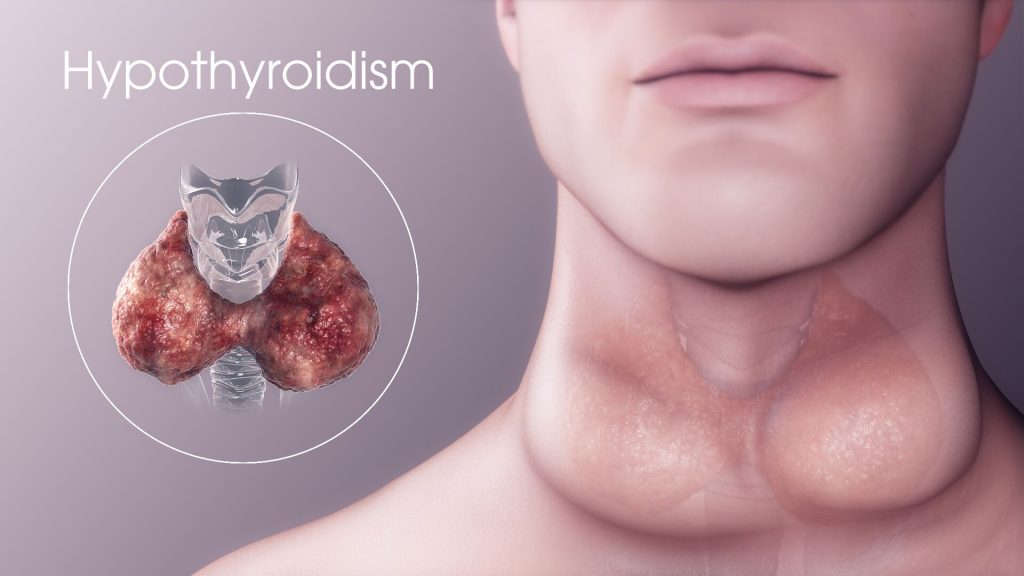 let's know the link between effect on  ovaries in hypothyroidism?