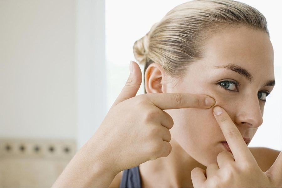 Don't Touch Your Acne Scars