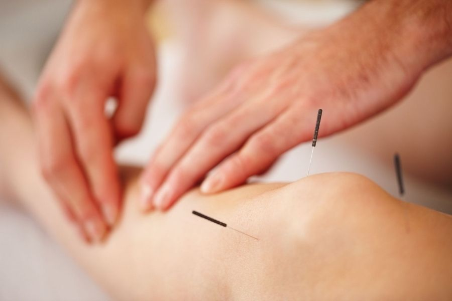 Health Benefits Of Acupuncture